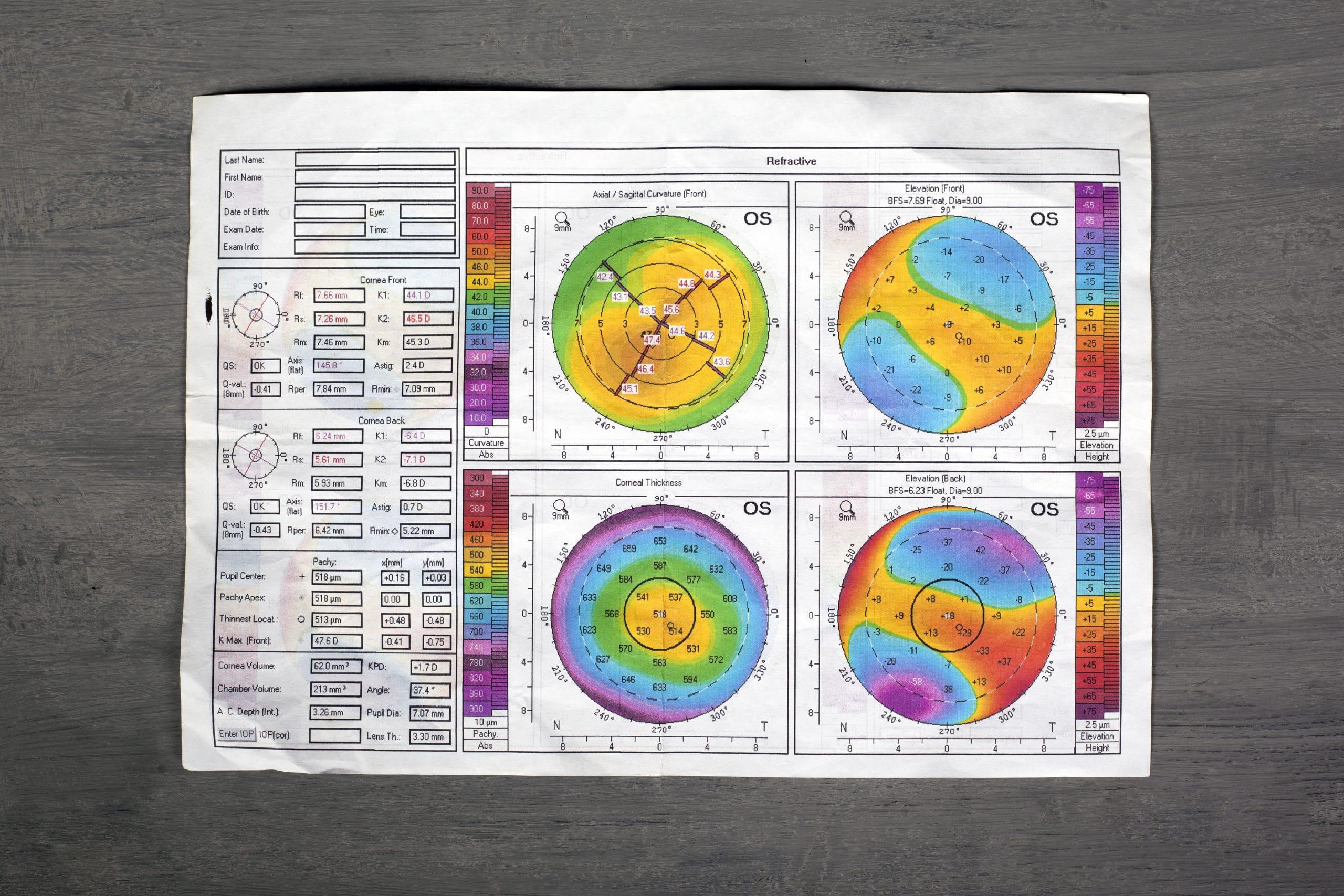 באופטיקה יפעת תוכלו לבצע בדיקת מיפוי קרנית