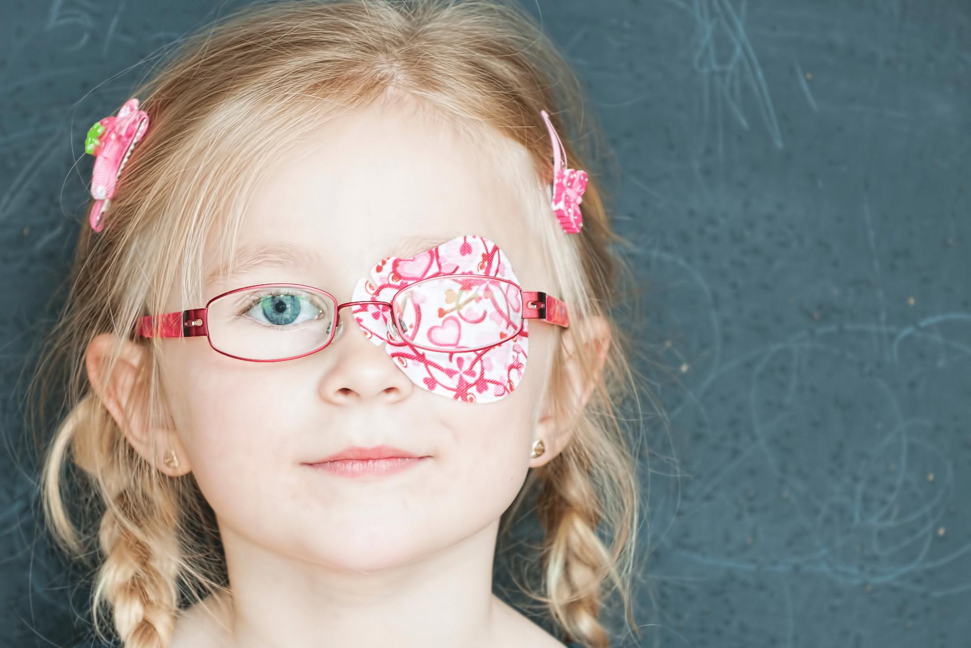 מה זה עין עצלה? – אופטיקה יפעת