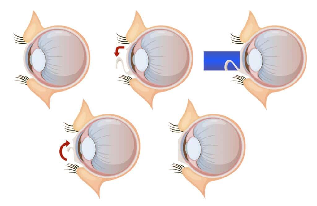 פתרונות ליובש בעיניים לאחר ניתוח לייזר באופטיקה יפעת אופטומטריסטית מוסמכת